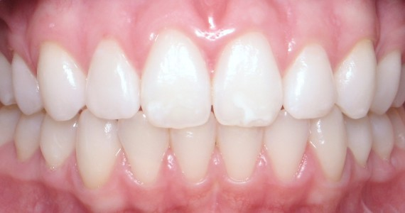 After Invisalign  Micro-abrasion and Bleaching