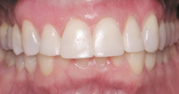After Invisalign Bleaching Cosmetic Restorations