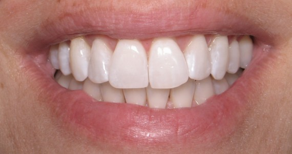 After Invisalign and Bleaching